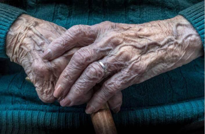 верикозни вени на ръце
