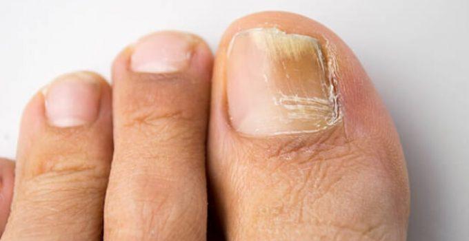 гъбички по нокти, крака