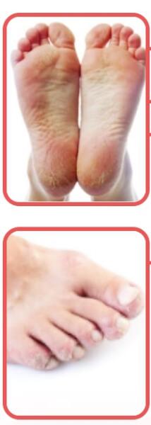 екзодермин крем гъбички по краката