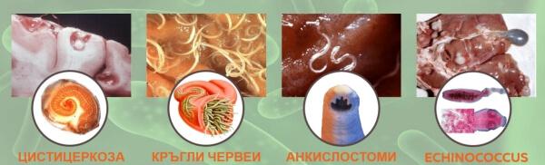 паразитол за паразити и детокс